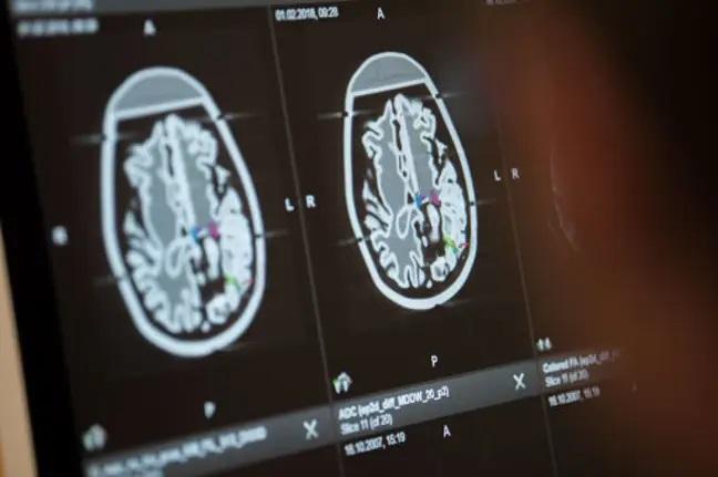 人脑结构与计算机的关联